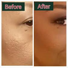 makeup for pitted s saubhaya makeup