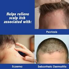 scalpicin scalp itch treatment 1 5 fl