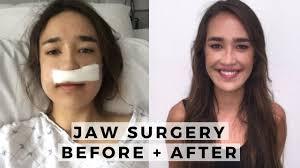 my underbite jaw surgery experience