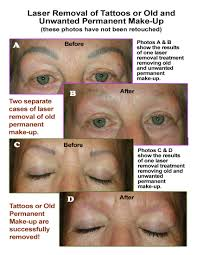 old or unwanted permanent make up