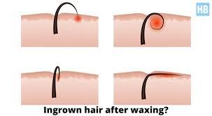 bad ingrown hairs after brazilian wax