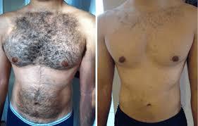 laser hair removal dallas plano