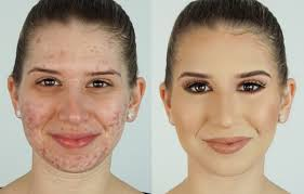 how to conceal blemishes with makeup