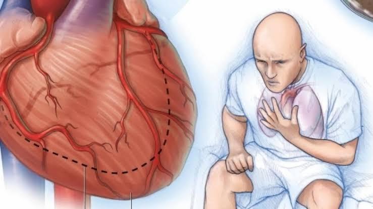 "Image result for insuficiencia cardiaca"""