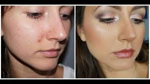 cover a pimple when your concealer