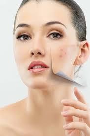 neem face masks for pimples acne