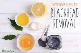 diy remes for blackhead removal