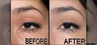 conceal under eye puffiness and bags