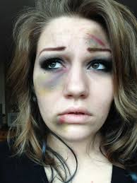 beat up fake bruises makeup gonna