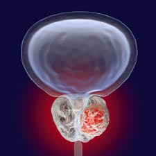 Signs And Symptoms Of Prostate Cancer ...