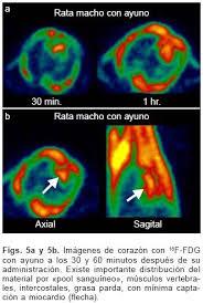 Resultado de imagen de La técnica combinada PET/CT es uno de los desarrollos más excitantes de la medicina nuclear