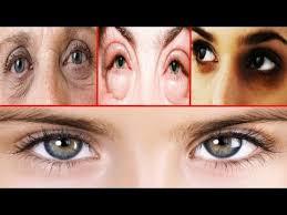 dark circles wrinkles eyes puffy eyes