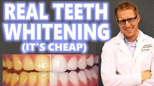 teeth whitening at home how to