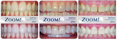 cosmetic dentistry whitening veneers