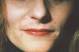 skin conditions that look like acne