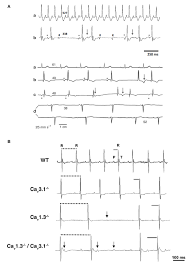 PDF] Functional role of voltage gated Ca2+ channels in heart automaticity |  Semantic Scholar