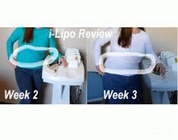 does laser lipo work reviews skinbea com