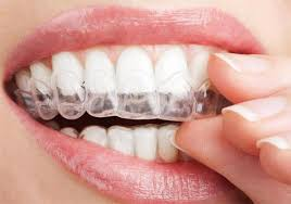 Safe Teeth Whitening: How Much Does it Cost and How Does it Work?: Rozenberg Dental NYC: General Dentists