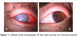acute corneal hydrops in down syndrome
