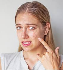 get rid of acne scars and pimple marks