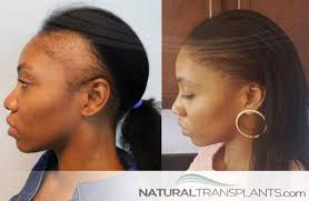 hair transplant before and after images