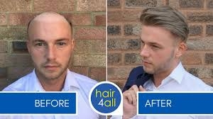 non surgical hair replacement 10