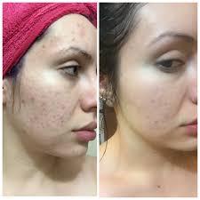 makeup artist choice mandelic salicylic
