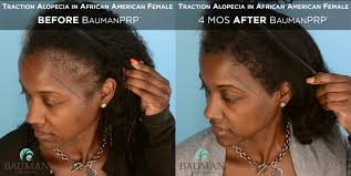 traction alopecia in african american