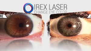 videos irexlaser permanent eye color