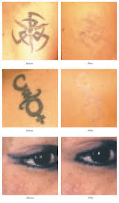 botox laser hair removal mole removal