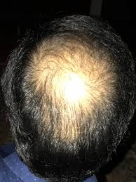 the most successful fue hair transplant