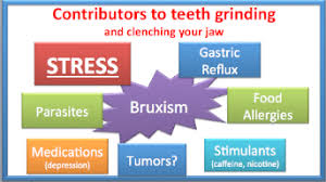 Image result for bruxism causes images
