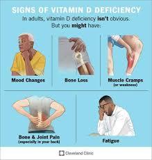 Vitamin D Deficiency: Symptoms & Treatment