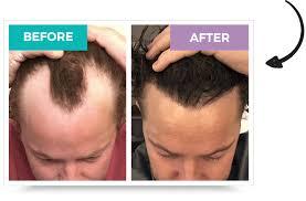 hair transplant turkey summer special