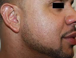 laser hair removal near me laser