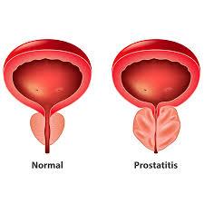 Inflamación de la próstata ¿Síntoma de alarma? ⚠️