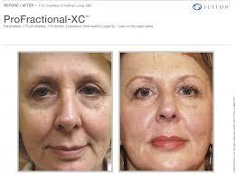 laser services thomas dermatology
