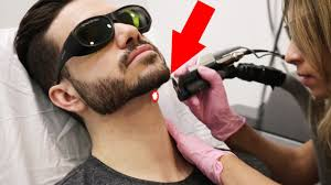 laser hair removal for men does it