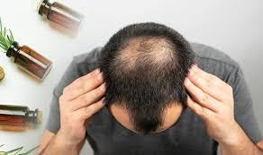 hair loss treatment the fruity oil