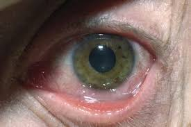 herpes simplex eye infections nhs