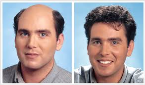 best hair transplant surgeon hair