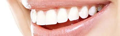 Best Veneers Dentistry Los Angeles