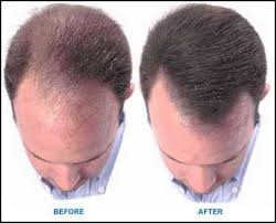 reverse or cure hair loss naturally