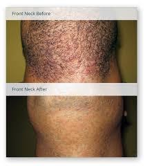 laser hair removal for folliculitis