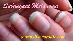 subungual melanoma description