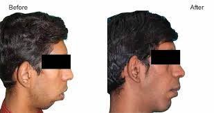 jaw surgery orthognathic surgery by