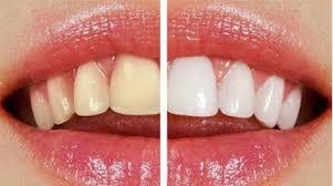 بلیچینگ | کلینیک های دندانپزشکی شرکت کلینیک های تخصصی دندانپزشکی زمرد ارائه  خدمات دندانپزشکی