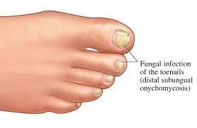 toenail fungus treatment custom foot