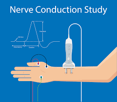 EMG and NCV Testing - Accelerated Recovery