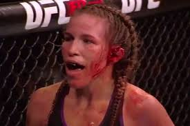UFC's Leslie Smith Nearly Loses Ear in Fight [VIDEO]